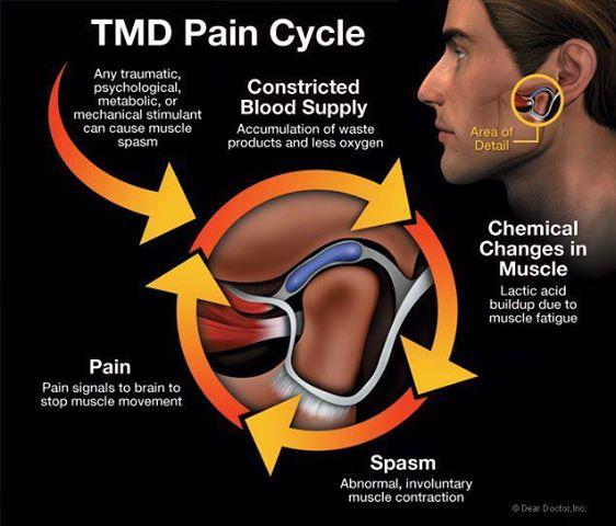 TEMPOROMANDIBULAR DYSFUNCTION (TMJ)