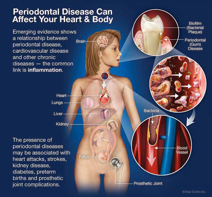Bακτηρίδια από τη στοματική κοιλότητα μπορεί να πυροδοτήσουν καρδιακά νοσήματα